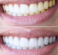 эффективность действия геля для отбеливания зубов PearlSmile
